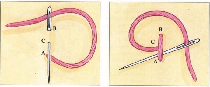 шов с узелками